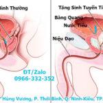 Viêm tuyến tiền liệt – Phòng khám đa khoa Gia Phước