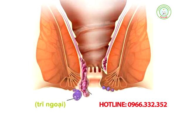 Hình ảnh của bệnh trĩ ngoại