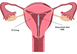 Đặt vòng tránh thai nên lựa chọn cơ sở uy tín