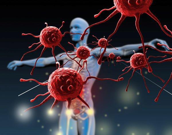 Hệ miễn dịch suy yếu có nguy cơ cao mắc bệnh sùi mào gà